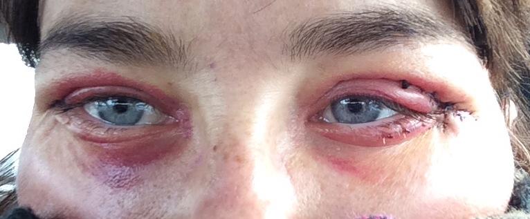 Les rides et la peau sèche autour des yeux que faire